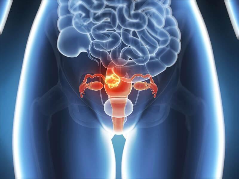 子宮の病気
