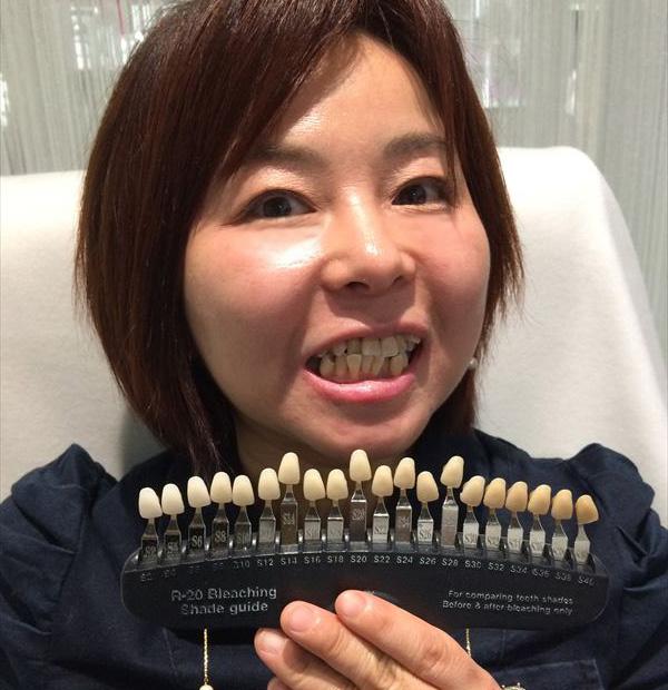 歯の色確認